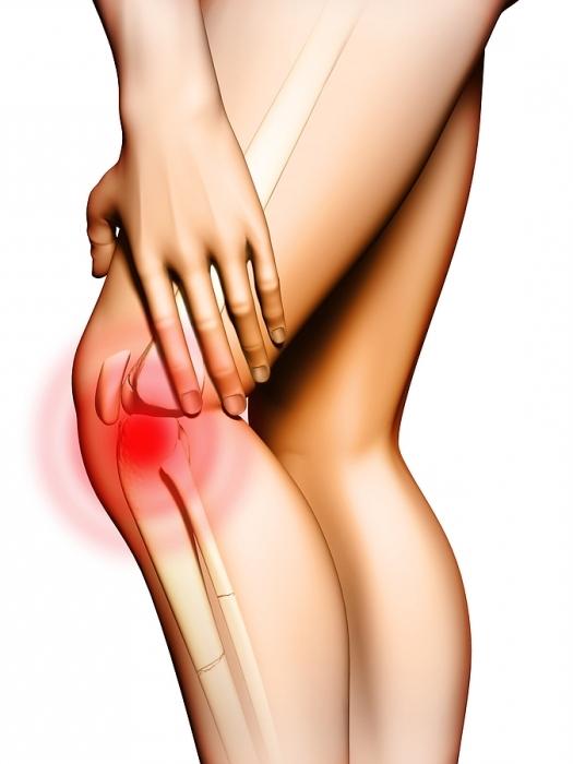 растяжение связок коленного сустава народными средствами