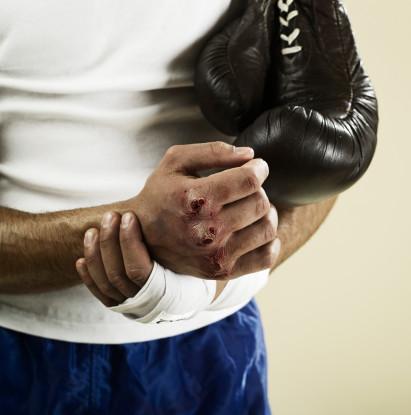 Кулаки боксеров фото