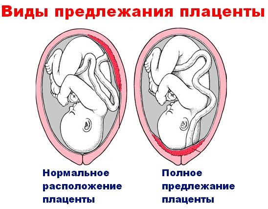 на какой высоте от веутреннего зева об¤зана быть плацента быть