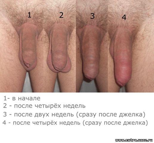 vozmozhna-li-masturbatsiya-posle-obrezaniya
