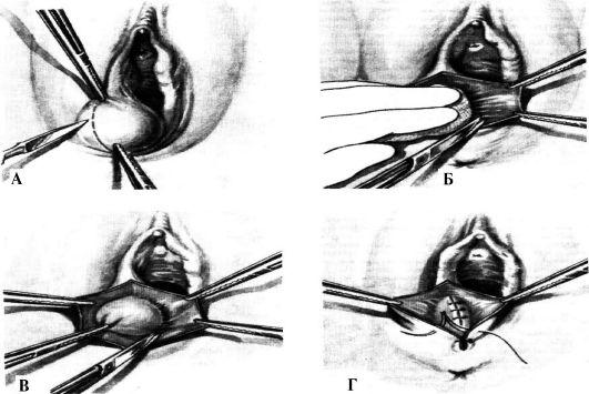 які є види жіноччих полових губ фото